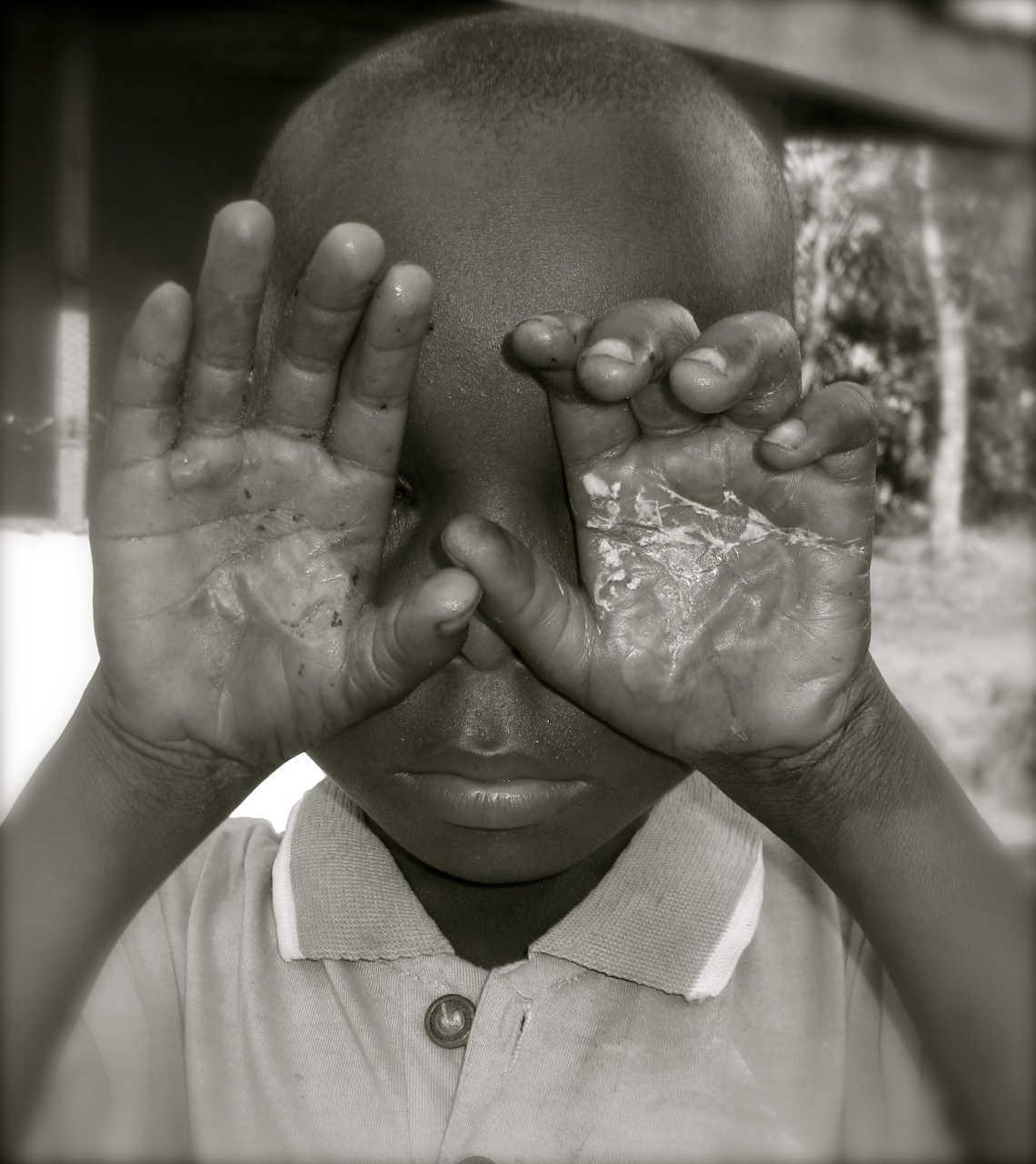 Child Abuse victim in Kenya